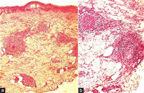 Carbamazepine induced severe cutaneous vasculitis Gutte RM