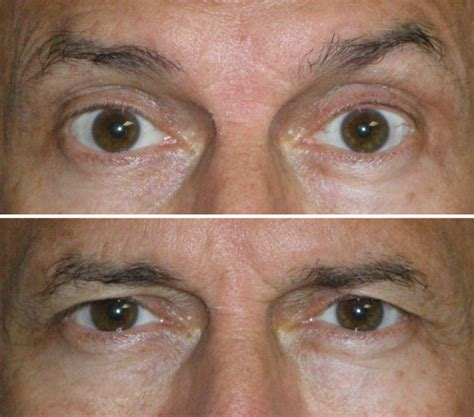 Botox Customization and the Droopy Brow « Dr