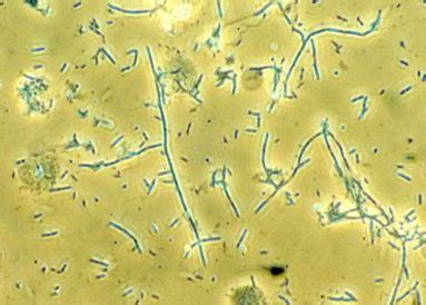 Microscopic Urine Components Flashcards by ProProfs