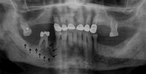 Denosumab-related osteonecrosis of the jaw - The Journal